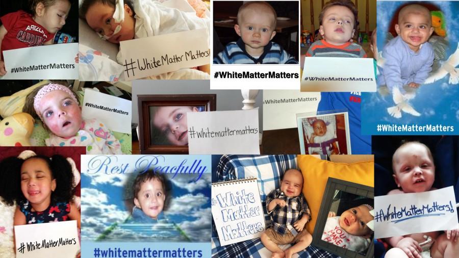 WhiteMatterMatters Video 2 Thumbnail